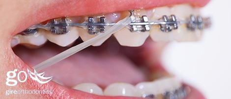 braces with elastics