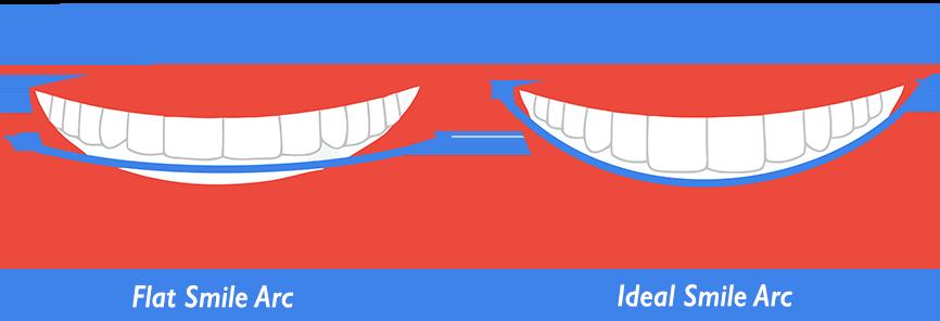 ideal smile arc