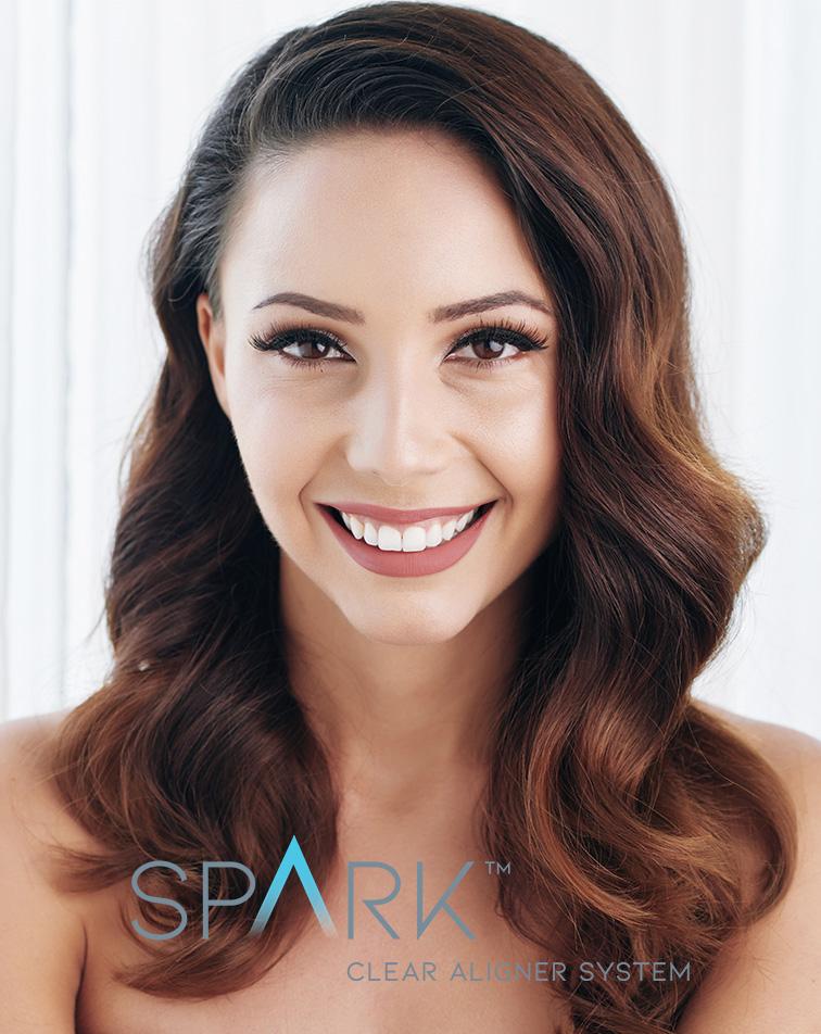spark braces