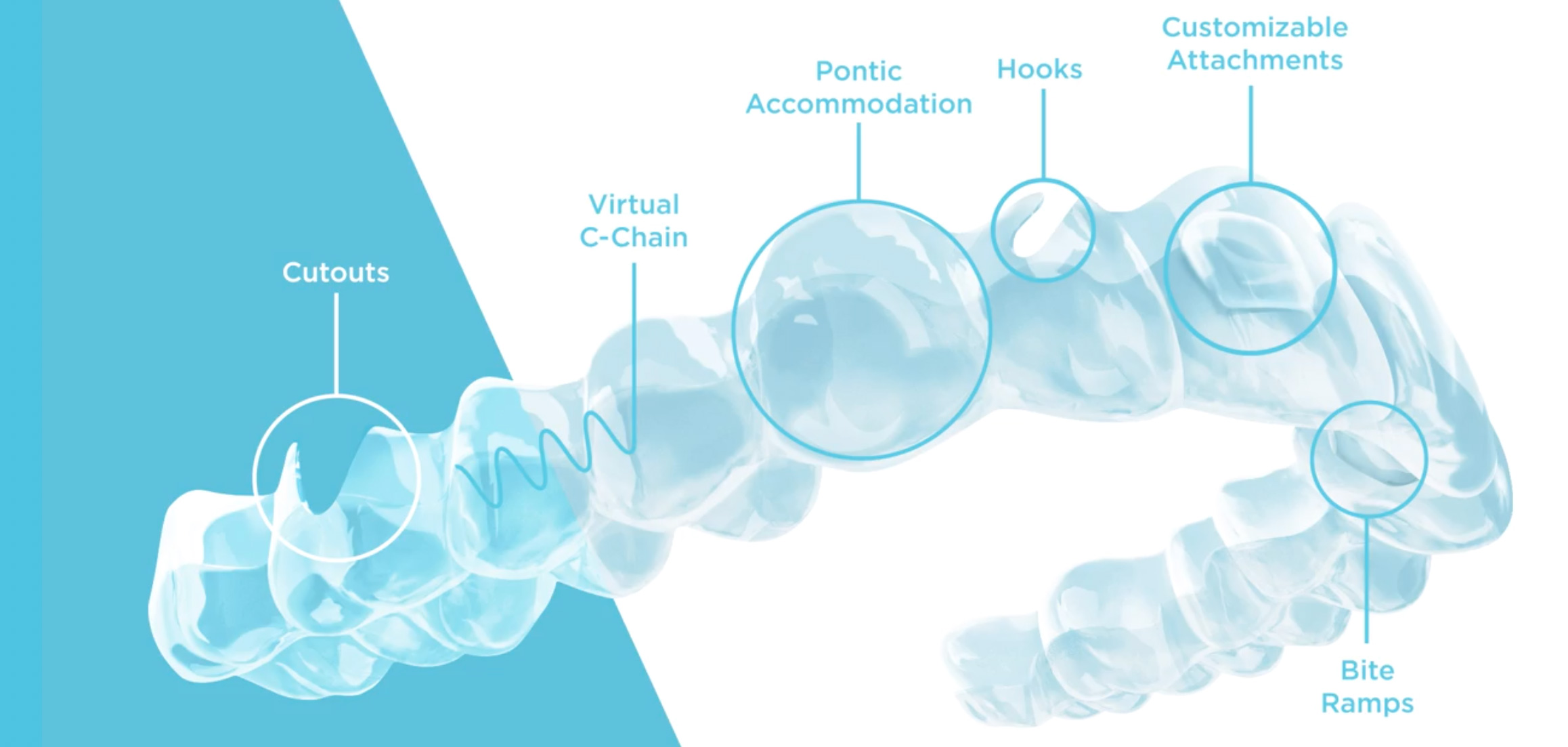 spark clear aligners
