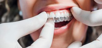 Ten Questions About Clear Aligners Answered