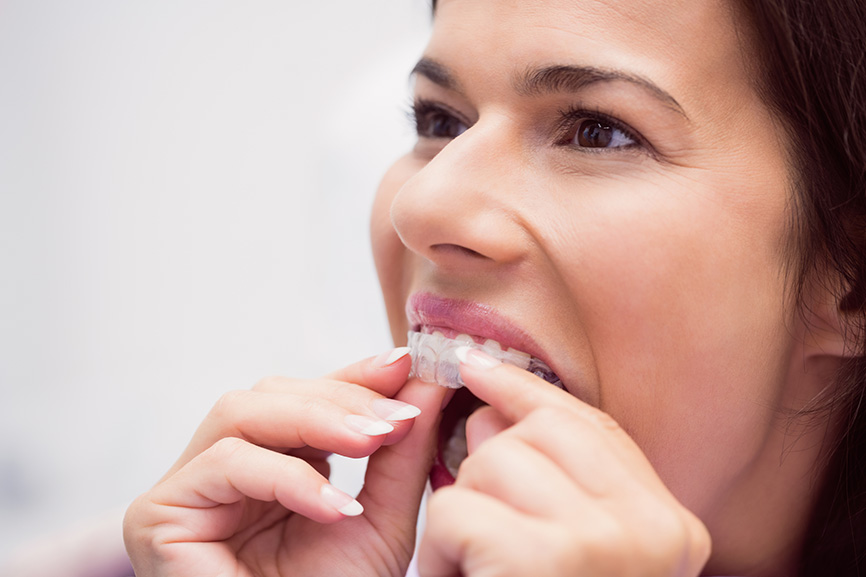 Clear Aligners Chino Hills