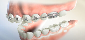 Can I Get Braces Only on My Top Teeth?