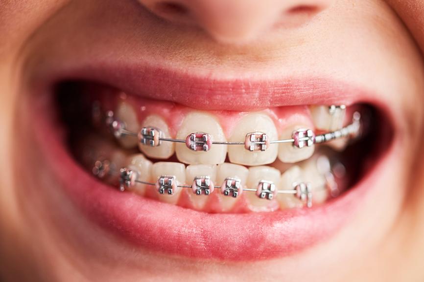 how braces work